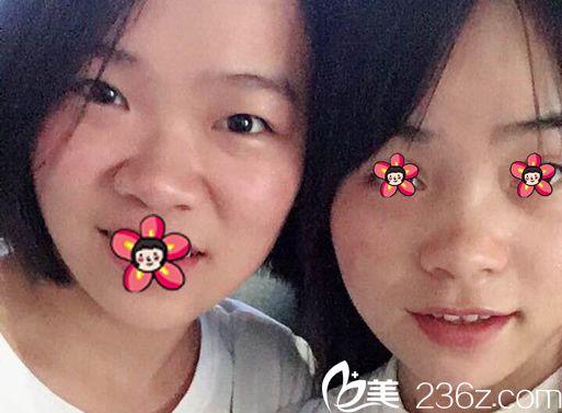 和小姐妹一起去杭州静港做双眼皮和隆鼻
