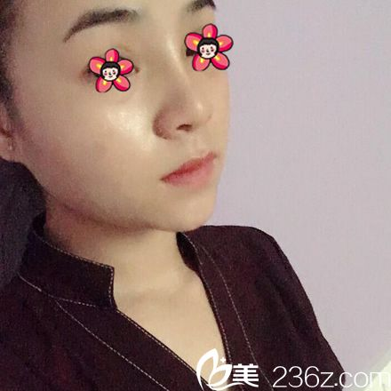 杭州静港做隆鼻9天恢复照