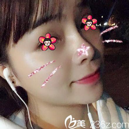 杭州静港程卫民隆鼻案例30天效果