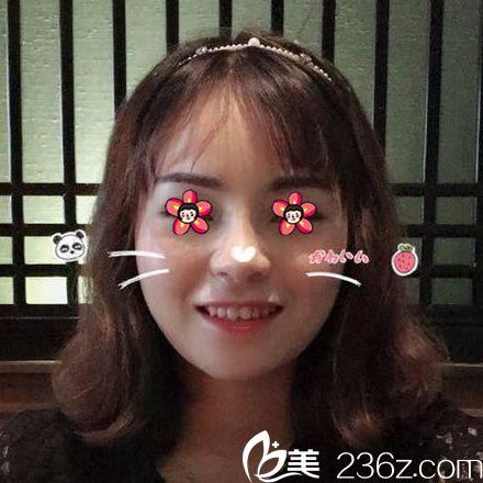 我鼻子是找杭州静港程卫民做的