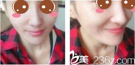 一个月前找韩国李斗荣美笑做下颌角切除出门的李斗荣做了假体隆鼻