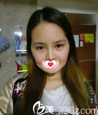 分享我在新余韩星做自体脂肪面部填充术后15天拥有迷人可爱心形脸