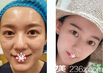 重庆郑荃丽格员工说她自己让周业松院长做面部线雕提升+玻尿酸填充苹果肌的过程。