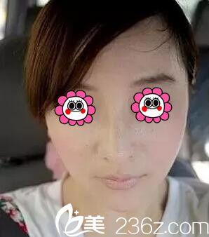 面部皮肤松弛显老,找沈阳欣博美陈迪做热玛吉治疗后让我年轻了好几岁!