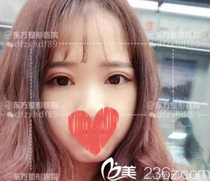 郑州东方整形的贺洁院长亲自给我做的芭比双眼皮 一双眼拯救一张脸原来是真的