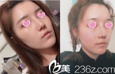 看北京米扬丽格巫文云夏正义联合给我打造鼻综合面部脂肪填充效果朋友说靠谱