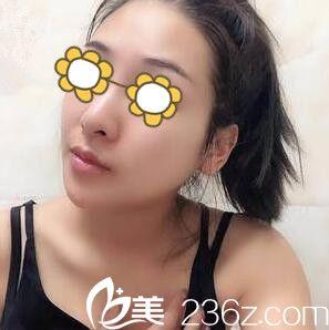 """在韩国美友整形医院做了下颌角术后我终于如愿拥有想要的上镜""""V""""字脸"""