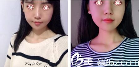 离去年去韩国JSTAR整形外科郑宰学那儿做颧弓内推和下颌角整形也快一年了。