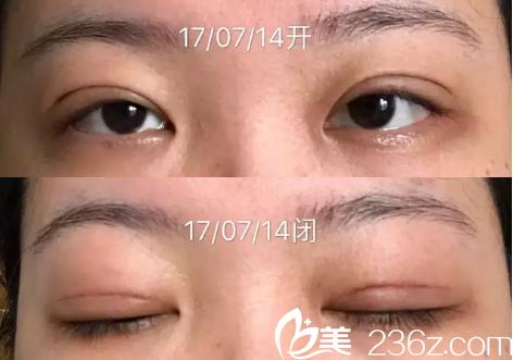 看了广州中山三院黄胜华和朱蕾医生的案例后找颜玲做了全切双眼皮
