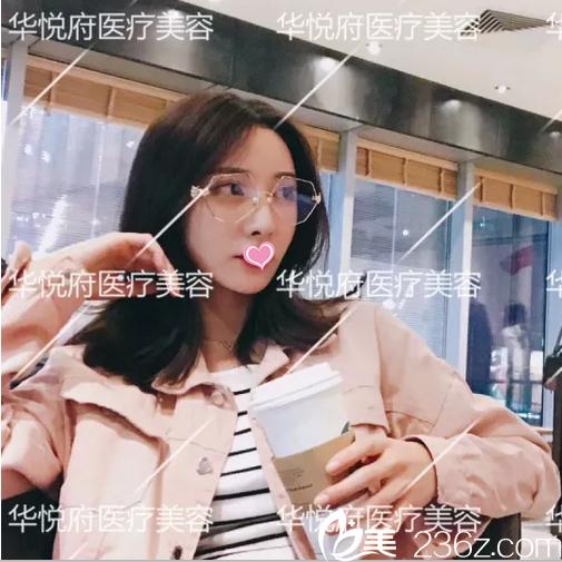 公开我在北京华悦府找许聪做面部脂肪填充+鼻综合修复第43天真实效果