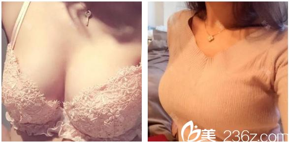 一个月前我在深圳博爱医院贾维顺医生的建议下做了自体脂肪丰胸