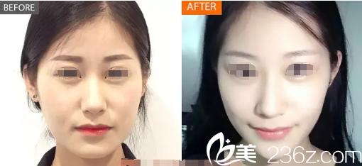 虽然美国BOTOX比兰州衡力贵,但为了效果还是在南京爱薇注射了保妥适一月告别咬肌肥大脸