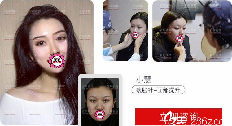 上海首尔丽格注射瘦脸证整形案例