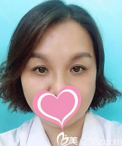 15天前我找芜湖伊莱美程婷婷做了祛黑眼圈治疗,大家觉得效果明显吗