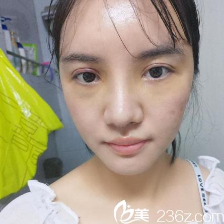 鼓起勇气找广州鹏爱整形医院卢刚医生做了膨体鼻综合隆鼻子和自体脂肪面部填充