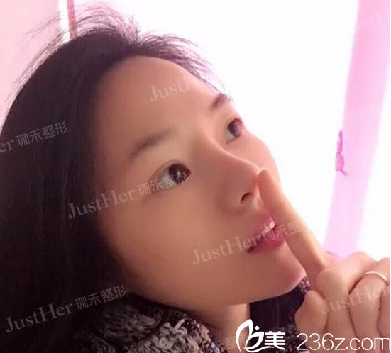 快看闺蜜找广州珈禾原广州妍希整形医院景丽峰医生做的鼻综合隆鼻好不好看