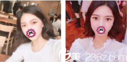 一年前去韩国李喜文做了韩式双眼皮,没想到这么长时间保持的还很好