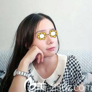 分享我找长沙欣颜医疗美容医院田毅做的自体耳软骨鼻综合术后一个月恢复效果