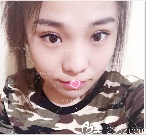 闺蜜在北京京都时尚做了韩式双眼皮不错推荐我做切开双眼皮修复