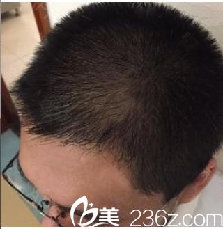 广州华美和美莱哪个植发好?看我花1万多元找代庆成医生做的发际线种植效果怎么样