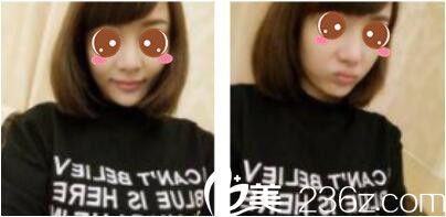韩国毛尚毛发移植技术怎么样?看我半年前找朴正一做的发际线种植