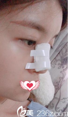 术后第2天鼻子肿胀