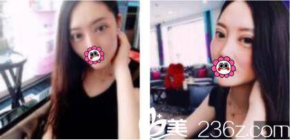 去上海知音医院美容科做了双眼皮,张宾技术果然不错术后恢复的特别自然无痕