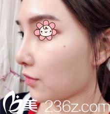 原来他们说韩国KSJ整形外科金顺珍做膨体隆鼻+鼻综合效果好不是空穴来风!