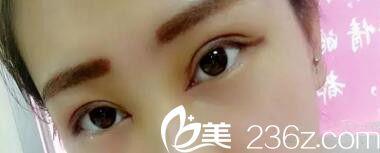 郑州超芳前台小妹全切双眼皮恢复全纪录 术后5天就消肿了