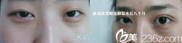 公布北京一美陈海良医生双眼皮整形修复等案例和全新价格表