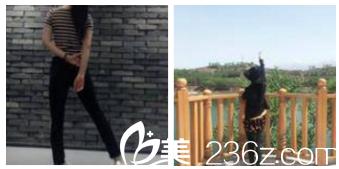 发小在北京科彦做双眼皮效果不错推荐我找邱凌燕做腿部吸脂