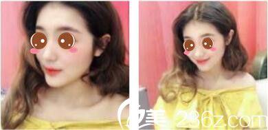 五一的时候去韩国休&美做了假体隆鼻,徐义锡隆鼻技术没的说特别高挺自然