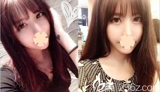 我去韩国安娜柯琳整形外科做了双眼皮修复和面部轮廓整形后,变成了网红小V脸