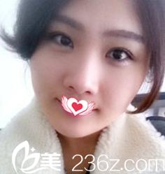 在邯郸京美做全切双眼皮15天就能恢复自然无痕 只能说荆万里医生的眼部整形技术太赞