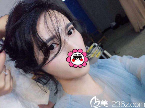 很开心武汉涵美袁羽专家亲自设计的切开双眼皮让我变电眼美女