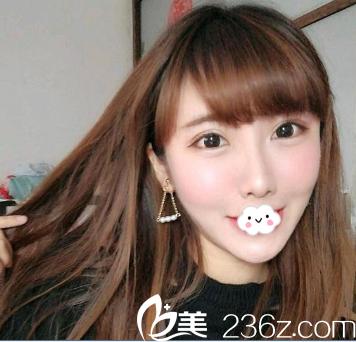 没想到天津美联致美刘道宁只是给我埋线隆鼻整了鼻尖变化竟然这样大