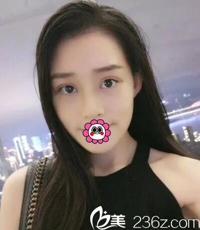分享我找长春海茵刘涛做双眼皮+假体隆鼻手术后2个月拥有精美小脸