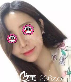 看到闺蜜在怀化韩美整形医院做的硅胶假体综合隆鼻效果不错于是我也来做个