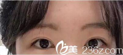 能看出我在郑州望京整形做过双眼皮和开眼角吗?张鹏主任的双眼皮技术看我照片就知道