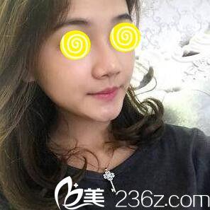 玻尿酸隆鼻效果好不好?看我在韩国蓝天感觉整形外科注射玻尿酸隆鼻1个月效果图