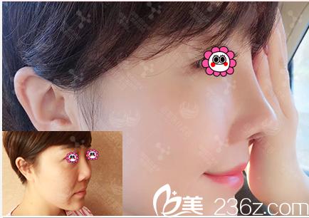 北京丽都新鲜整形价格表和吴玉家鼻综合隆鼻修复案例分享