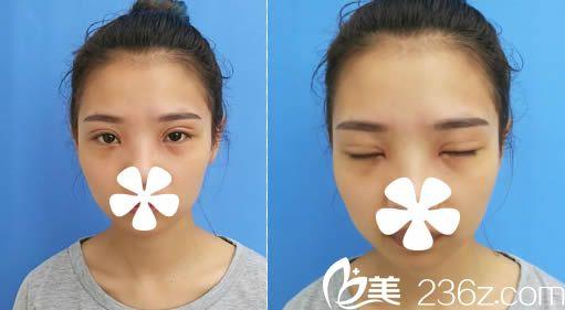 我去福州海峡整形美容医院让林秀兰做了全切双眼皮,分享术后1-7天的恢复过程