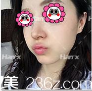 快来看我在北京韩啸整形做仿生自然假体隆鼻第45天真实效果