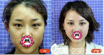 北京丽都于晓春和曹卫华双眼皮技术那个好?真人案例给你答案