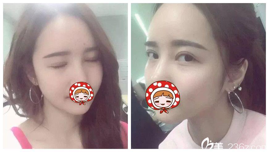在苏州小诊所做的双眼皮一年后还是肉条明显到南京华美大医院做了修复,顺带做了去眼袋