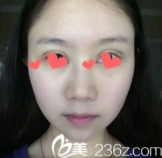 沈阳名流做双眼皮怎么样?快看我找沈阳名流王莉莉割的平行双眼皮术后恢复效果图
