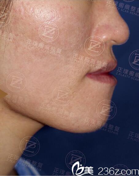 被青春痘瘢痕困扰多年的我在武汉正璞找到了去痘坑的好办法
