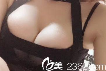 找兰州亚韩雷蓓做自体脂肪隆胸前 闺蜜说我的胸又扁又平又小