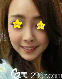 闺蜜在柳州仁美做注射玻尿酸很好 我也找杨云霞主任注射瘦脸针术后效果真的很棒