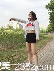 【真实案例】大腿粗壮减肥瘦不下去到天津知妍做吸脂瘦腿恢复效果照片展示